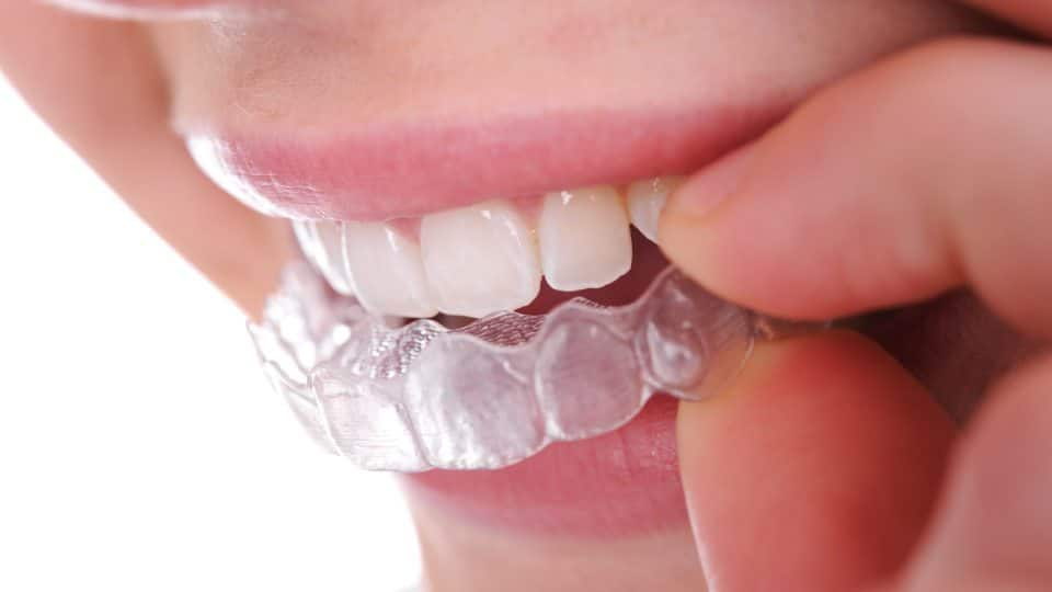 Invisalign Special Offer Featured Image - Marx Family Dental