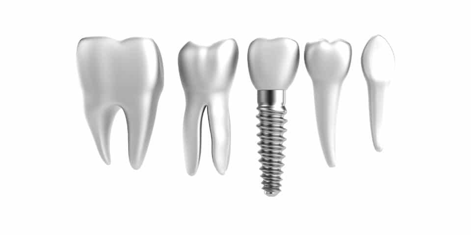 Candidates Mini Dental Implants Featured Image - Marx Family Dental