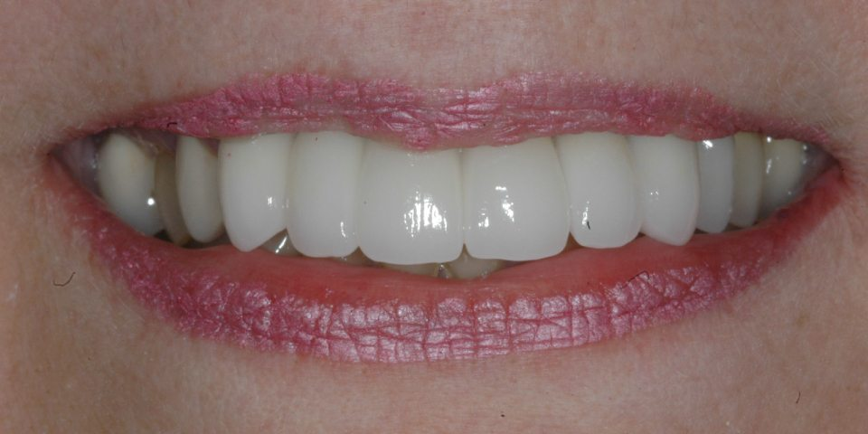 Dental Implants with Crowns Image 01 - Marx Family Dental