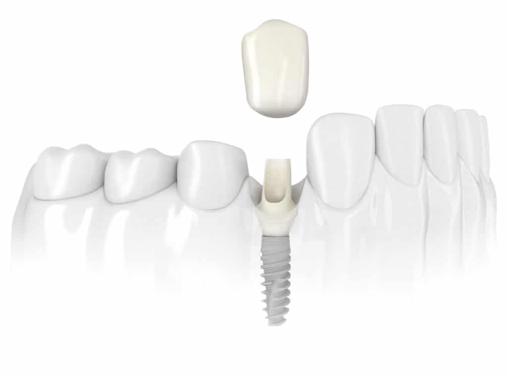 Dental Implant Questions and Answers Image - Marx Family Dental