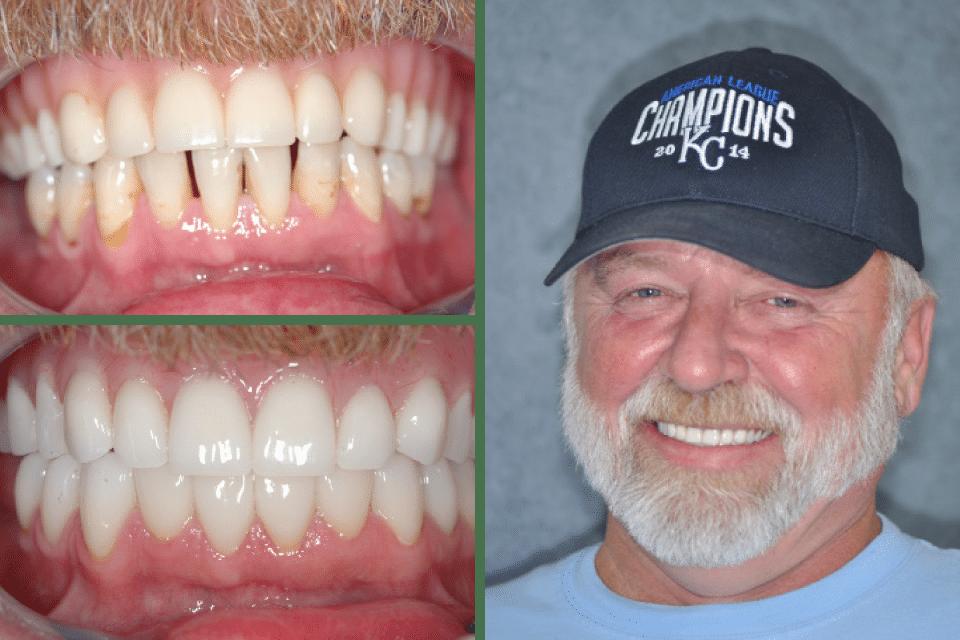 goed uit x schoenen voor goedkoop 100% hoge kwaliteit Dental Implants Archives | Marx Family Dental