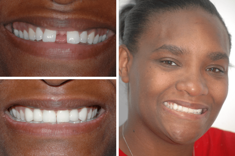 Before After Image Araina - Marx Family Dental