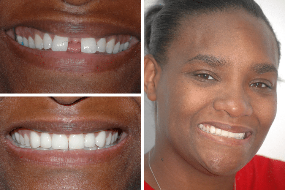 Before After Image Araina - Marx Family Dental