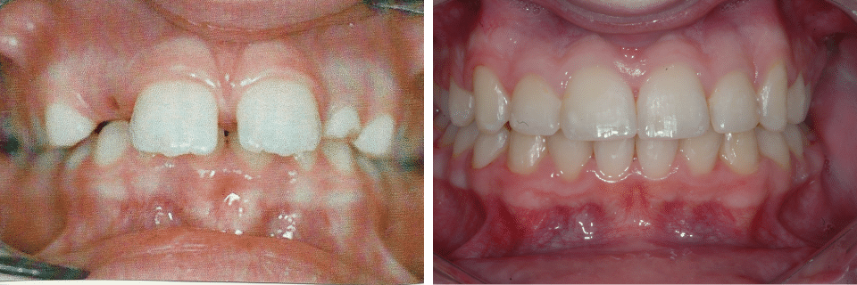 Orthodontics Before After Image 01 - Marx Family Dental
