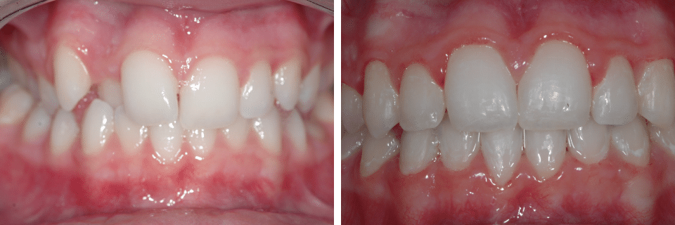 Orthodontics Before After Image 02 - Marx Family Dental