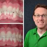 Orthodontics Before After Image Quinn - Marx Family Dental