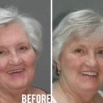 Connie Before After Image - Marx Family Dental