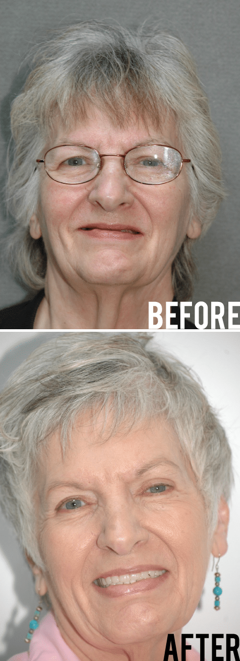 Full Mouth Restoration Before After Image - Marx Family Dental