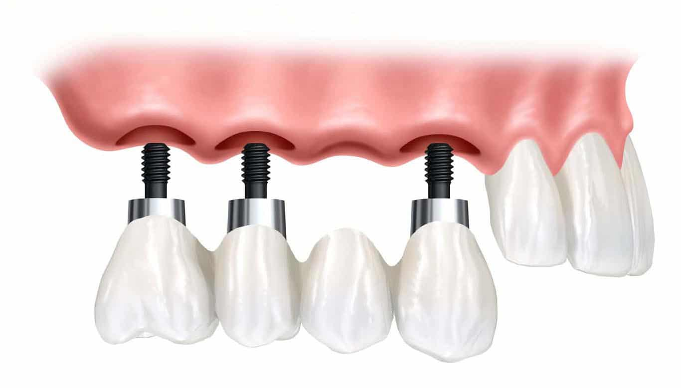 Dental Implant Supported Bridge Image - Marx Family Dental