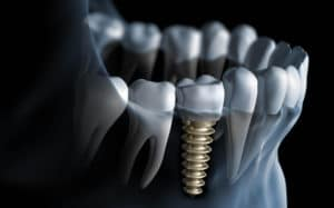 Dental Implants In Kansas City Featured Image - Marx Family Dental