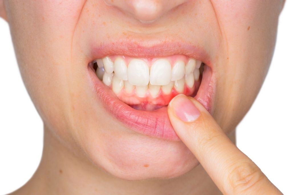 Five Reasons To Treat Gum Disease Featured Image - Marx Family Dental