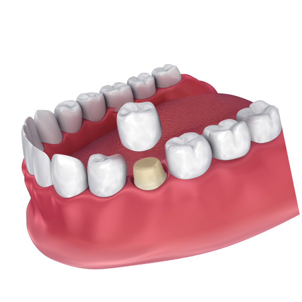 Common Questions About Dental Crowns Featured Image - Marx Family Dental