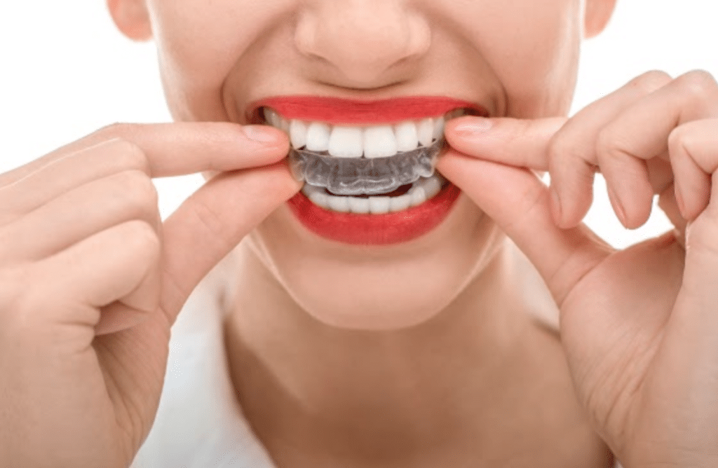 An Orthodontic Solution That Looks Great Featured Image - Marx Family Dental