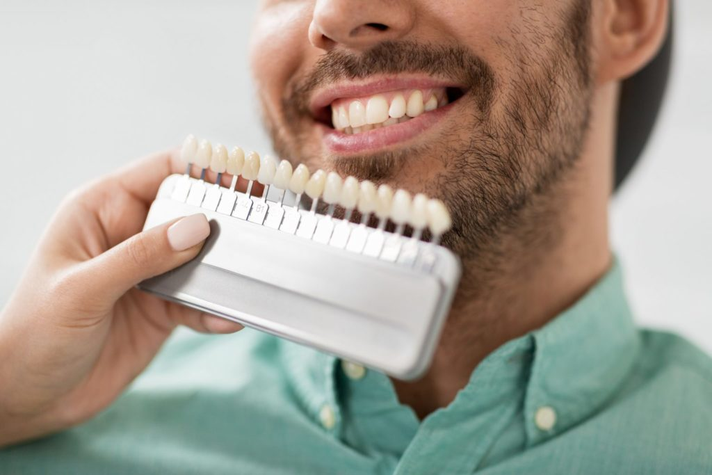 Versatile Veneers for a Perfect Smile Featured Image - Marx Family Dental